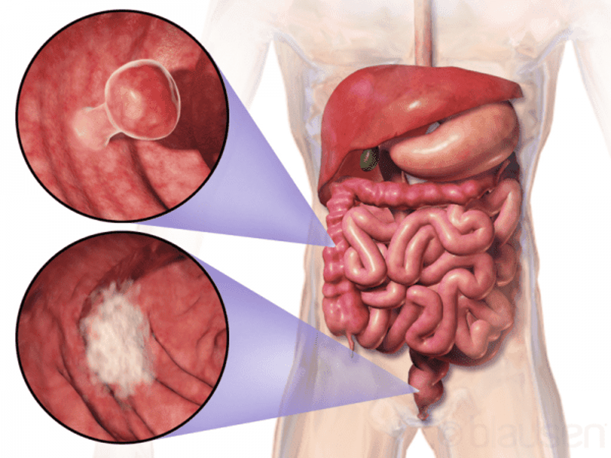 At Home Test For Colon Cancer Screening Receives Unanimous Support From Fda Advisors 10 0