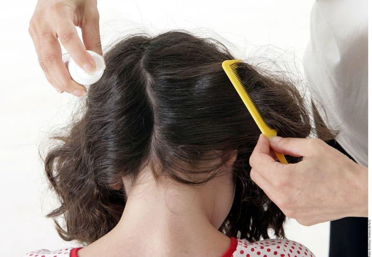 como curar los piojos en el cabello naturalmente