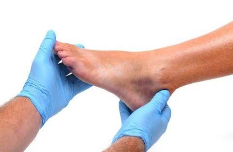 Tornozelos pés inchados e 90 com anos