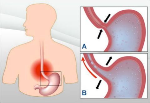 Dolor nocturno en la úlcera duodenal