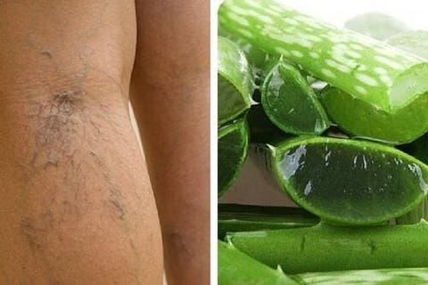 Nas ajudar úlceras pernas a curar para vitaminas