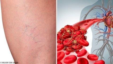 Superficial do flebite da tratamento braço